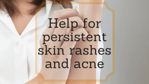 Help for persistent skin rashes and acne